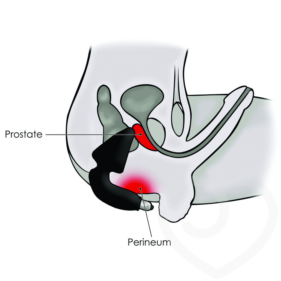 seks-posle-biopsii-prostati
